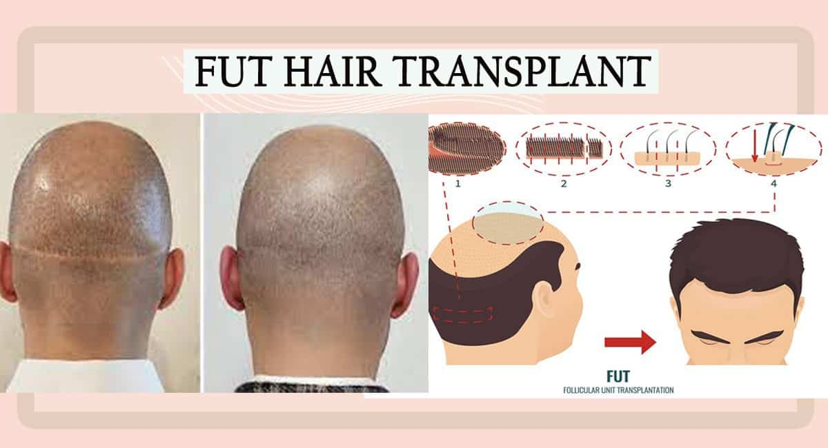 FUT Hair Transplant: Is It the Permanent Hair Treatment for Hair Loss?
